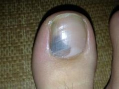 得了灰指甲用什么方法能治好